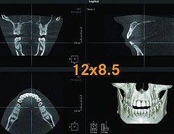 Digitale Volumentomographie (DVT) und Fachkunde für Zahnmediziner in Hamburg